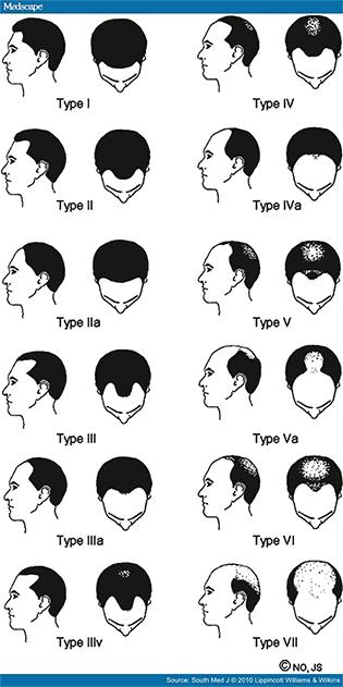 alopecia traitement à Montréal
